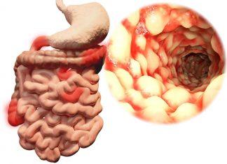 Crohnova choroba - všetko o chorobe (príznaky, diéta, liečba)