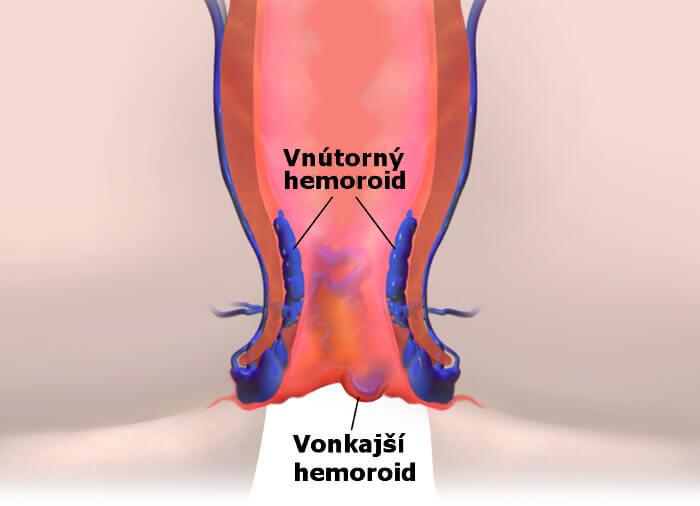 Hemoroidy - vonkajšie a vnútorné