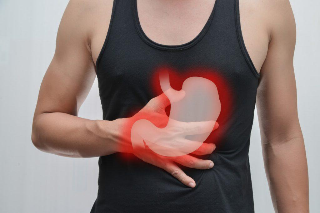 Zápal žalúdka (gastritída)