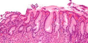 Zápal žalúdka - gastritída