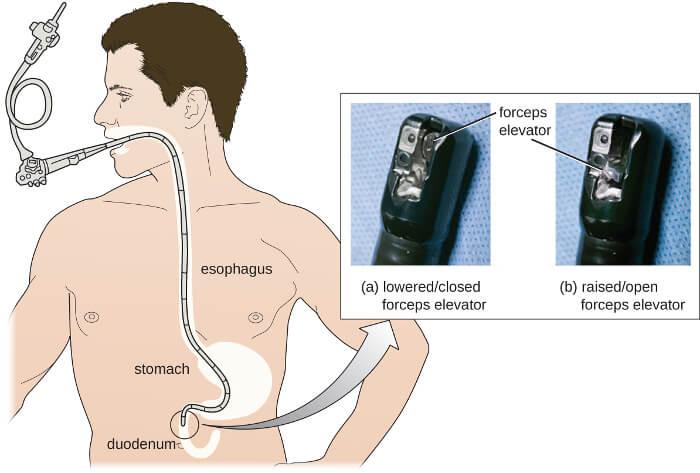 Zápal žalúdka - gastroduodenoskopia