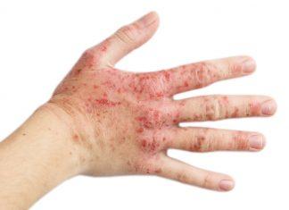 Ekzém na ruke - prejavy, príčiny + praktické tipy