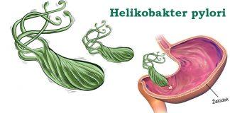 Helikobakter pylori - aká je liečba