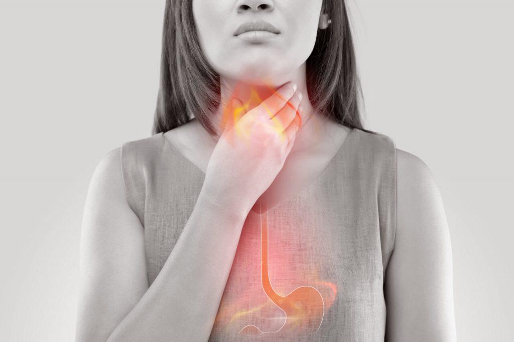 Pálenie záhy - príčiny, domáca liečba + praktické rady
