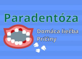 Paradentóza - domáca liečba, príčiny