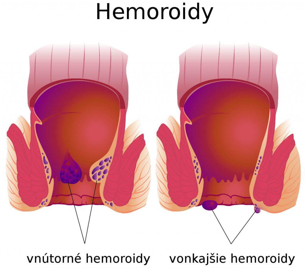 Vonkajšie hemoroidy a vnútorné hemoroidy