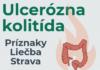 ulcerózna kolitída - príznaky, liečba, strava