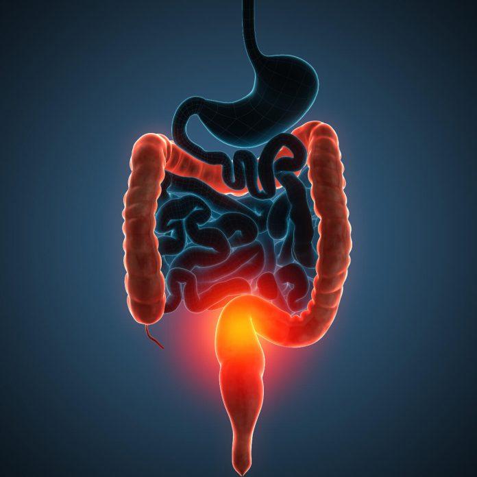 Ulcerózna kolitída - príznaky, liečba a strava