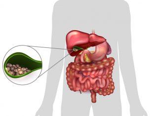 Žlčníkové kamene - príznaky, diéta, liečba