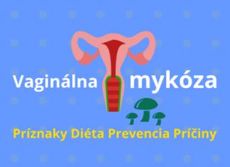 Vaginálna mykóza (príznaky, diéta, prevencia a príčiny)
