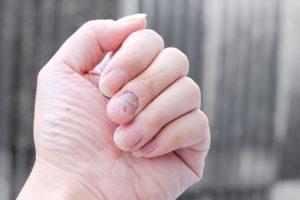 Mykóza rukou, Tinea manuum