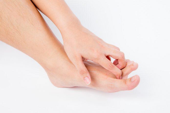 Mykóza nechtov a nôh - domáca liečba + lieky bez predpisu