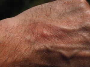 Štípance od komára - uštipnutie komárom