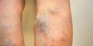 Kŕčové žily - varixy