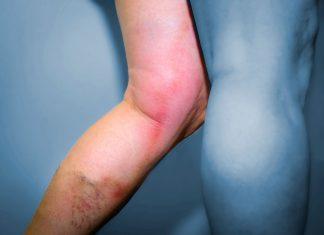 Zápal žíl pod kolenom - príznaky
