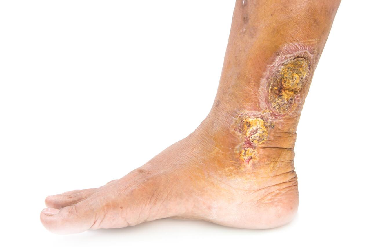 Bercove vredy, rana na nohe