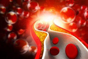 Zúženie ciev a ukladanie tukových nánosov - ateroskleróza
