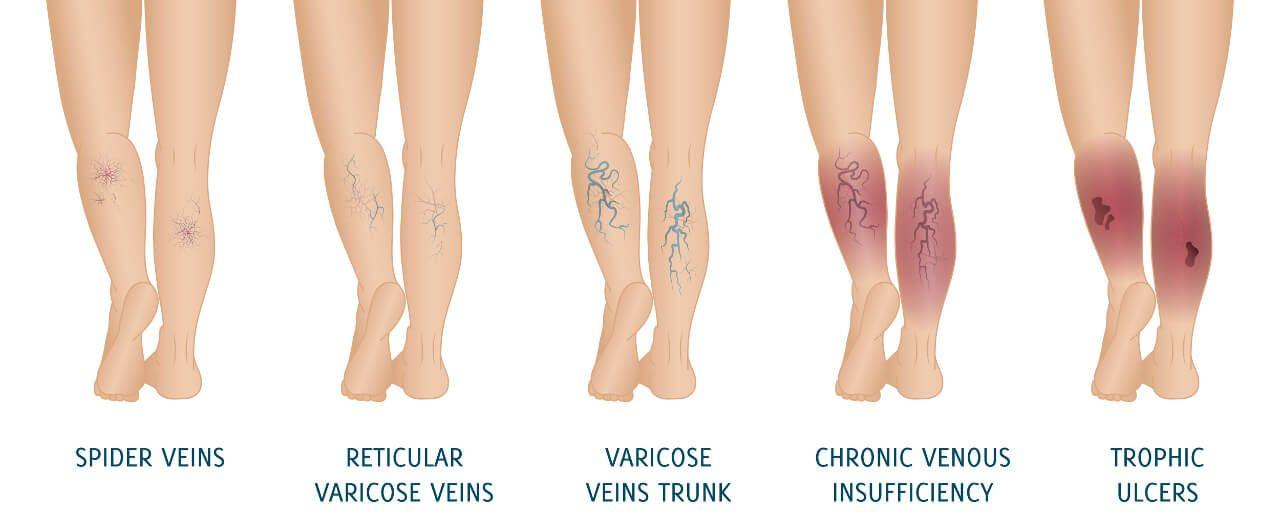 Kŕčové žily - varixy a štádiá ich vývinu