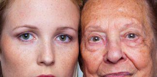 Pigmentové škvrny na tvári u starých aj mladých