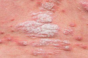 Psoriáza - vzhľad a príznaky