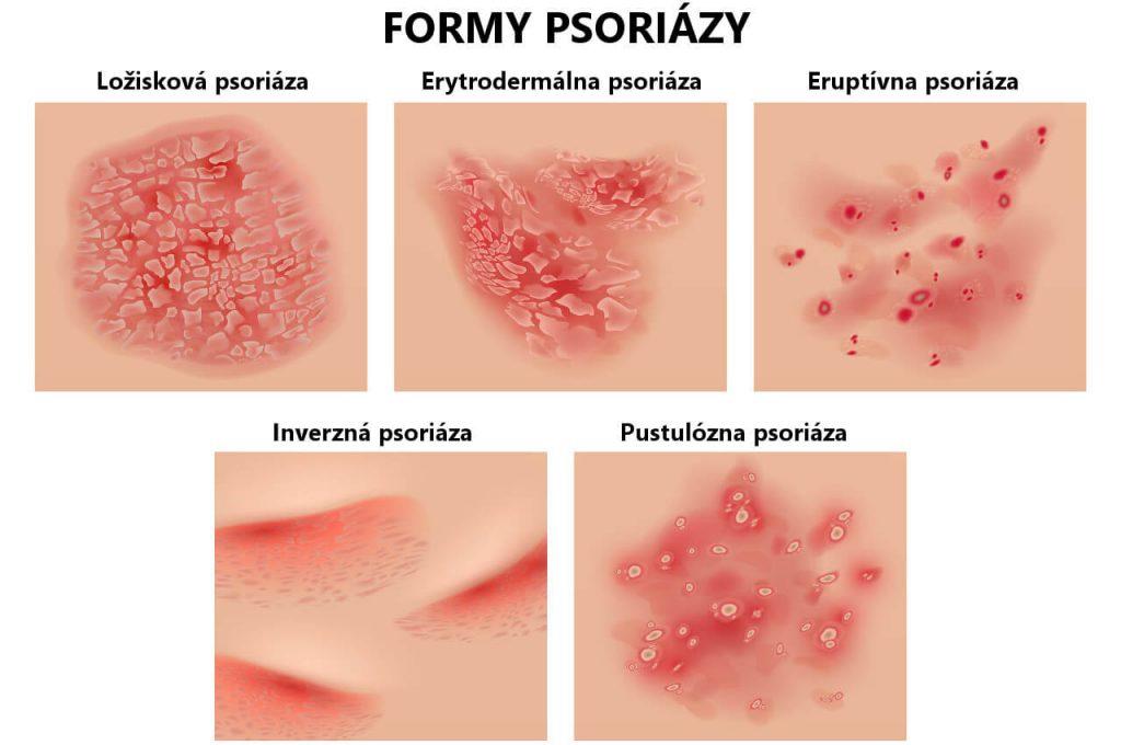 Psoriáza – príznaky a fotky