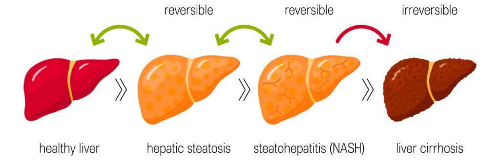 Cirhóza pečene - štádiá poškodenia pečene