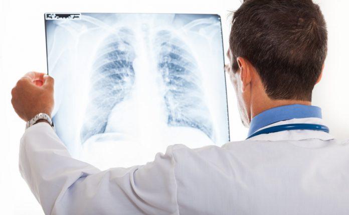Pneumónia (zápal pľúc)