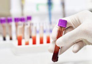 Trisomy test - vyšetrenie v tehotenstve