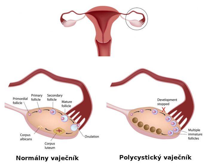 Polycystické vaječníky
