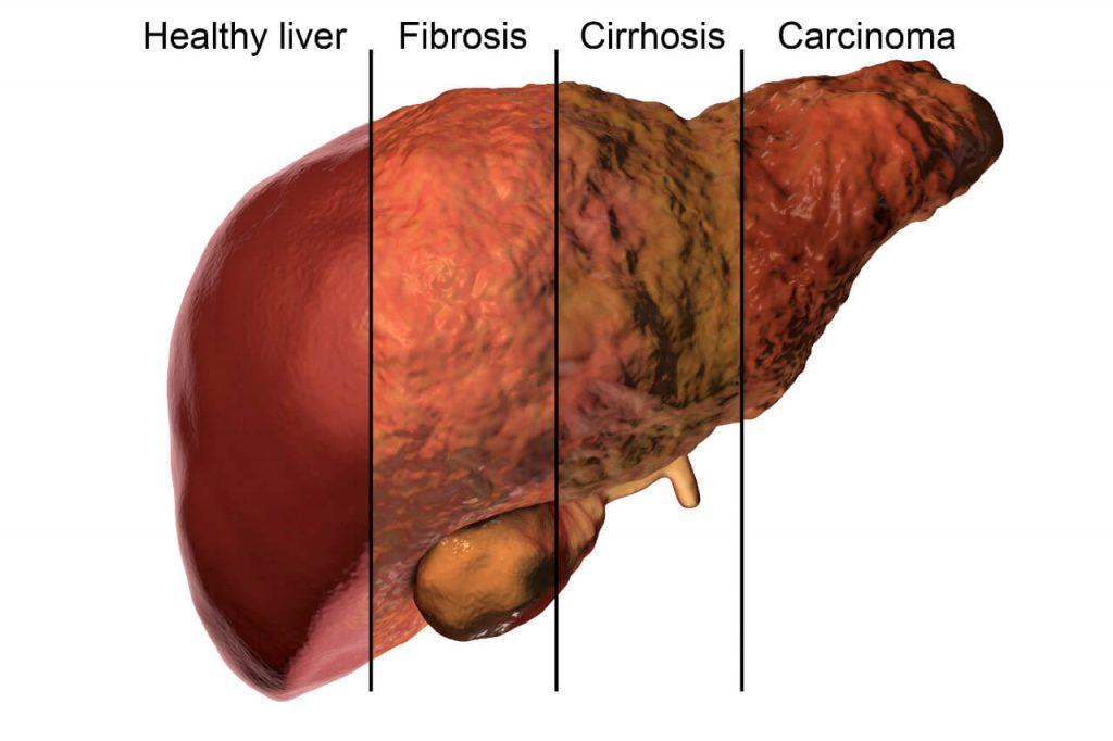 Rakovina pečene - posledné štádium, zdravá pečeň, fibróza, cirhóza, rakovina