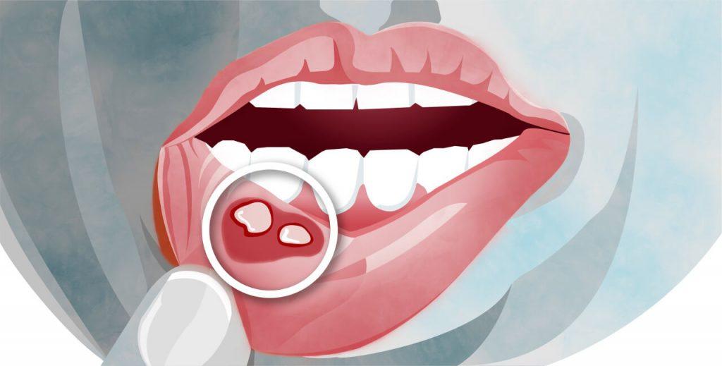 Afty v ústach na spodnej pere