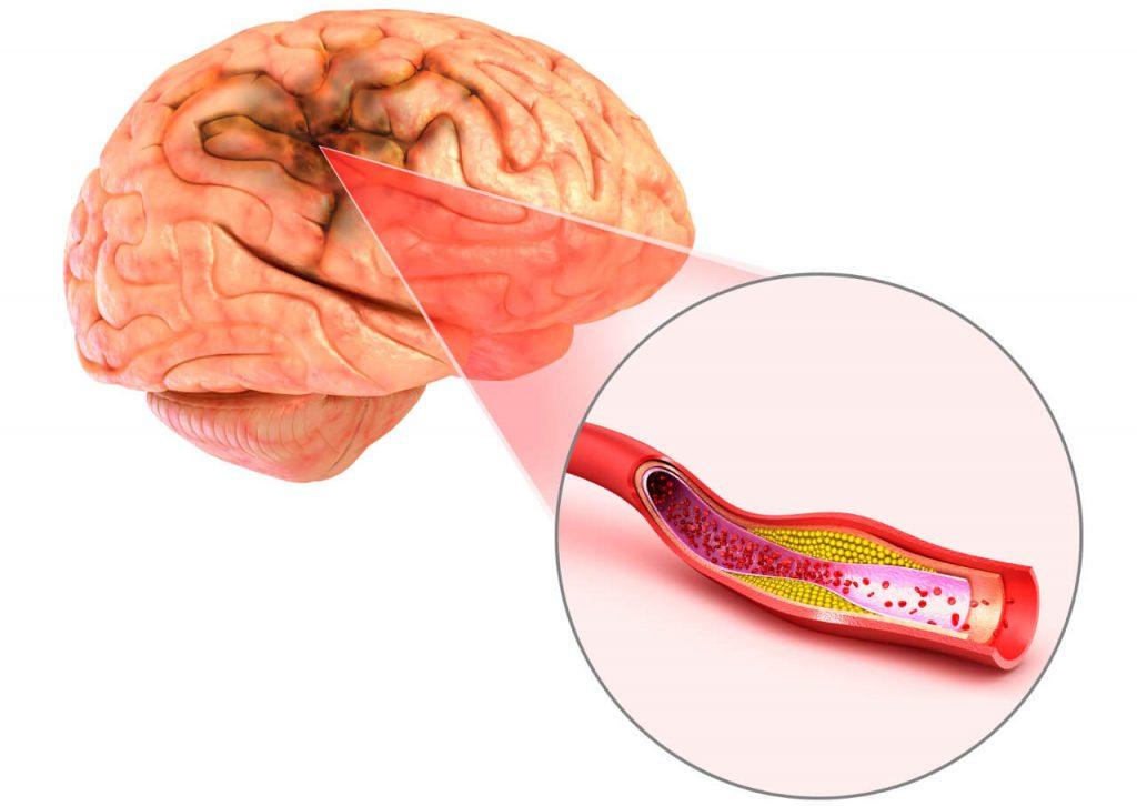 Ischemická mozgová príhoda (mŕtvica)