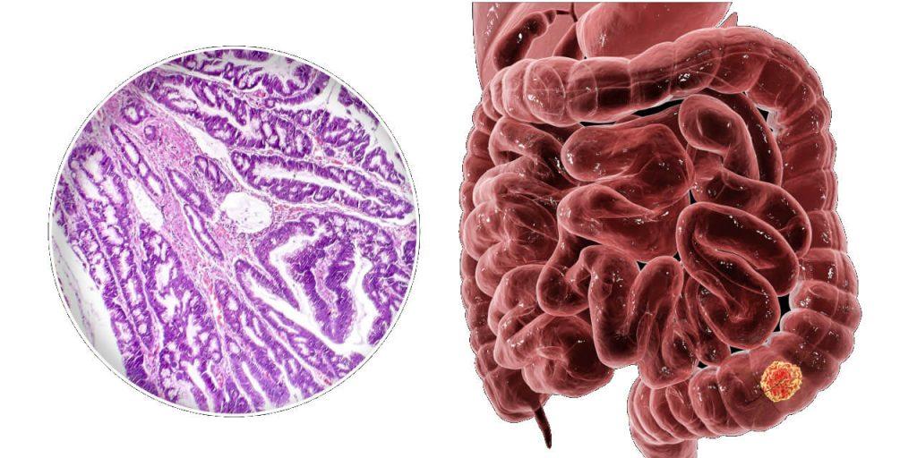 Rakovina hrubého čreva (kolorektálny karcinóm)