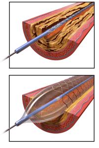 Angioplastika a stenty