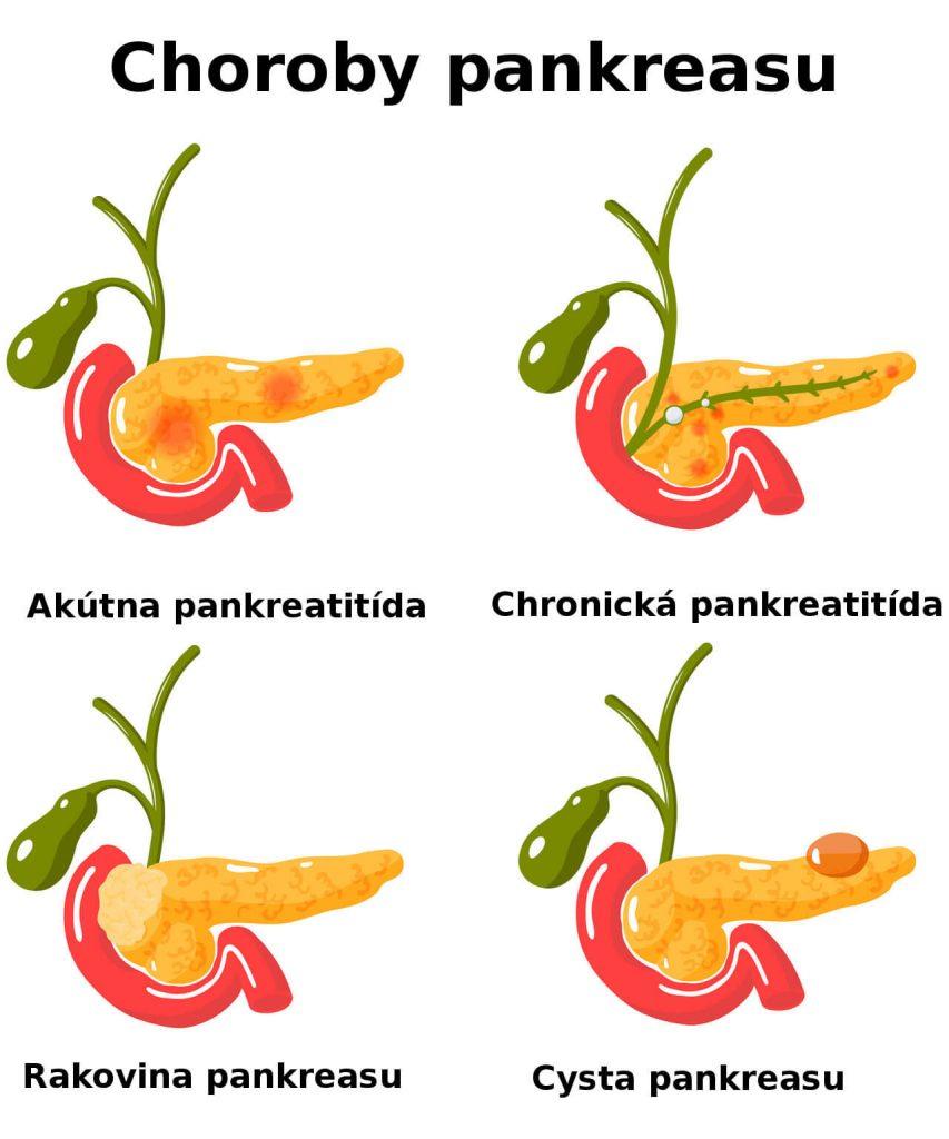 Choroby pankreasu - akútna pankreatitída, chronická pankreatitída, rakovina a cysta pankreasu