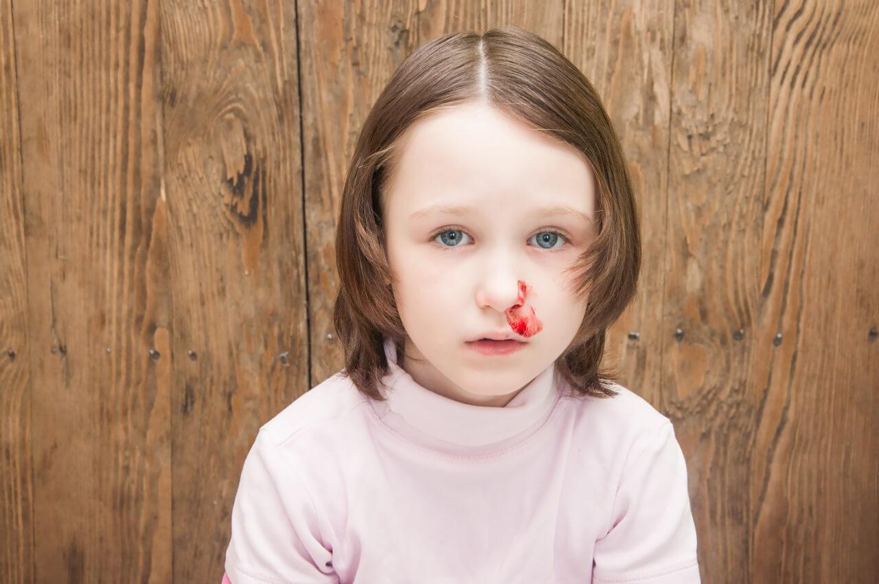 Krvácanie/krv z nosa u detí