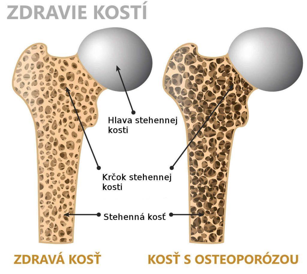 Osteoporóza a zdravá kosť (anatómia stehennej kosti)