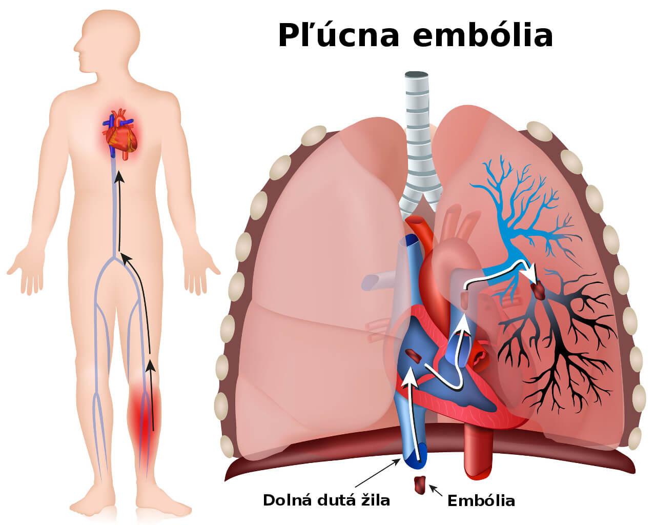Pľúcna embólia, hlboká žilová trombóza