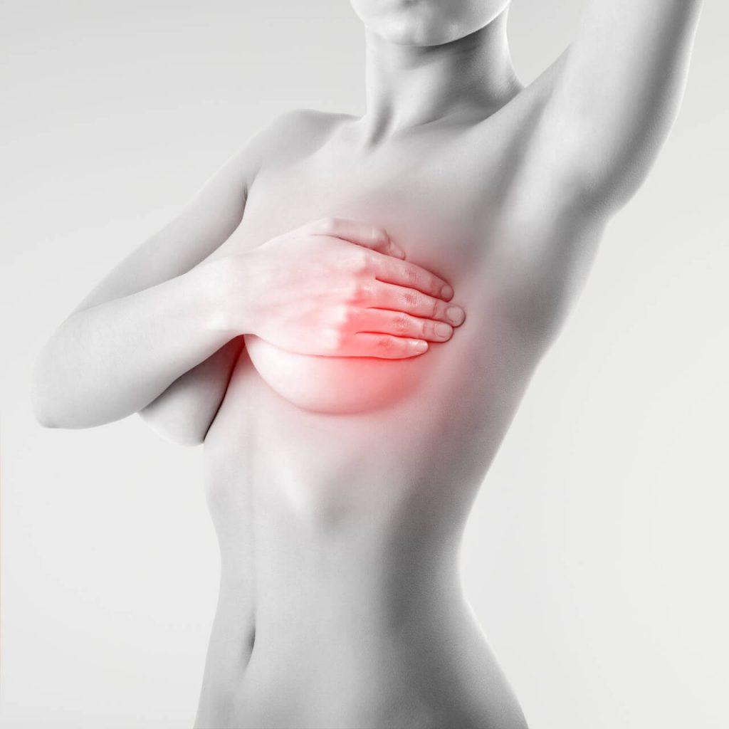Zápal prsníka (mastitída), príznaky