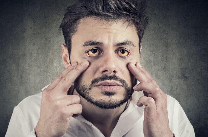 Hepatitída (žltačka) - žltnutie pokožky a očných bielok