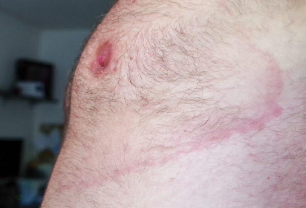 Lymská borelióza - erythema migrans, príznak