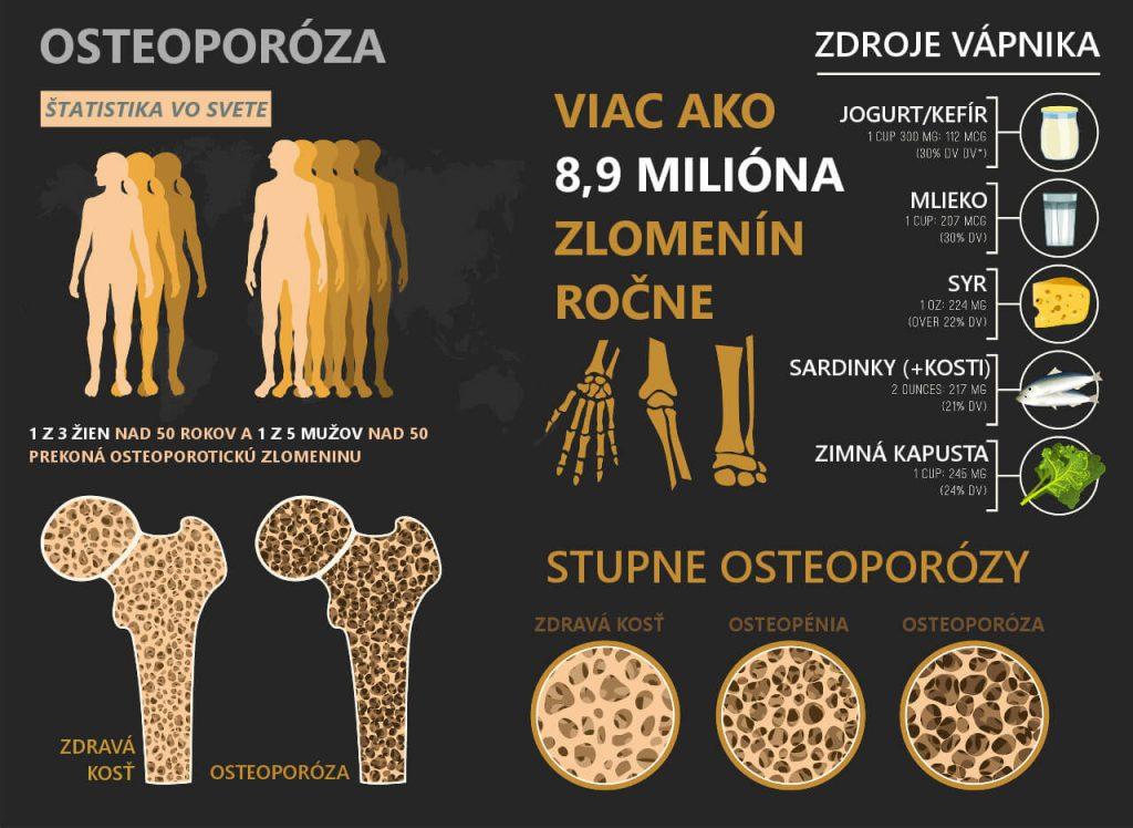 Osteoporóza - infografika (stupne, osteopénia, zdroje vápnika)