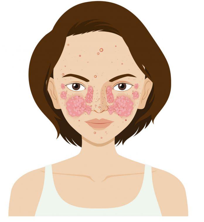 Systémový lupus erythematosus (SLE), vyrážka