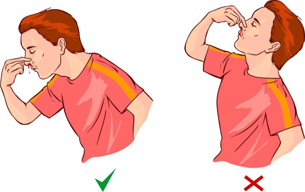 Ako zastaviť krvácanie z nosa?