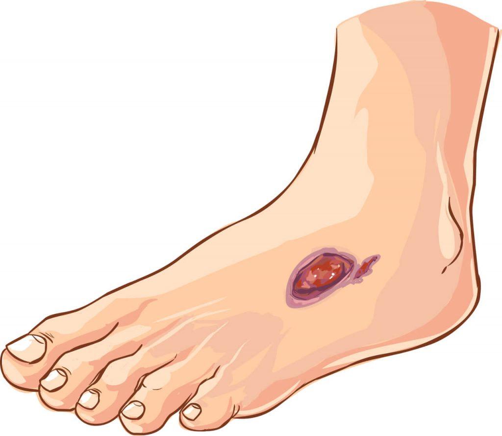Diabetická noha, vred, rana na nohe