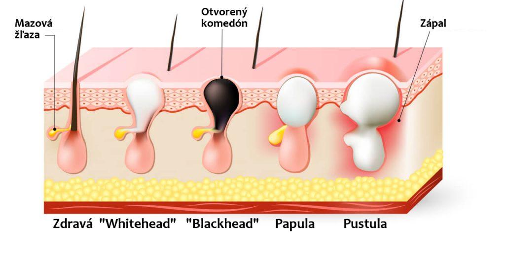 """Typy akné - zdravá mazová žľaza, """"whitehead"""", """"blackhead"""", papula, pustula"""