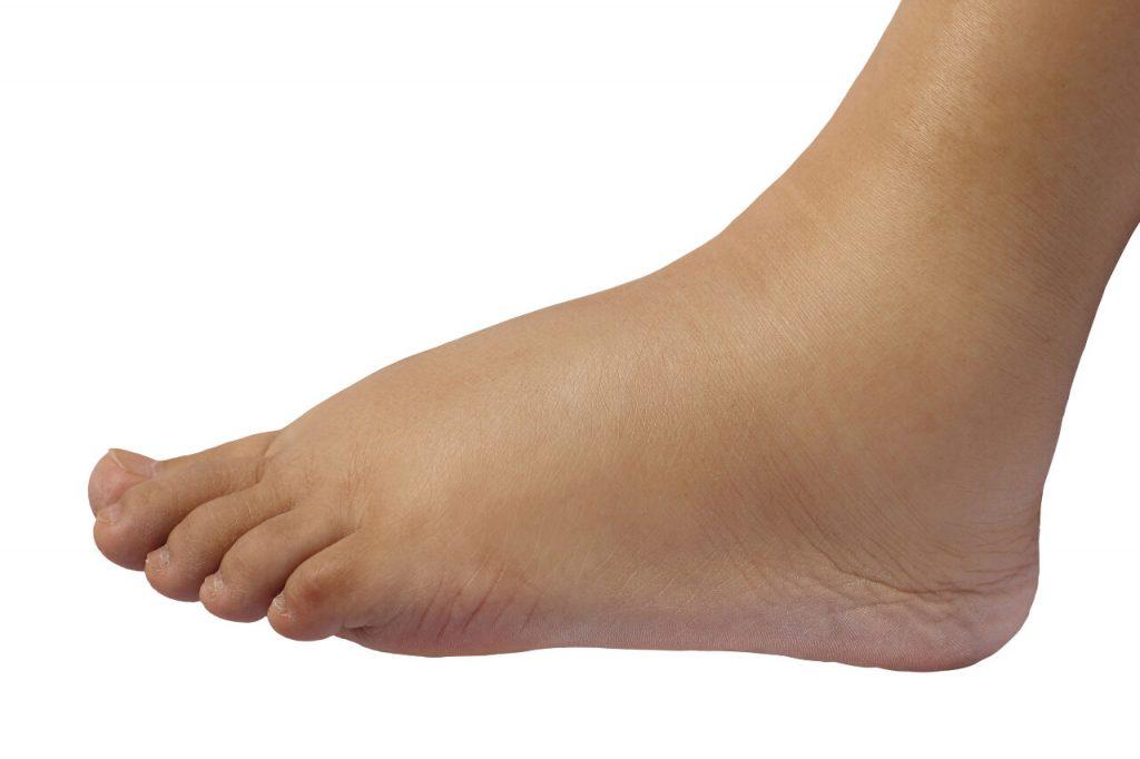 Opuchnuté nohy - ako na odvodnenie organizmu?