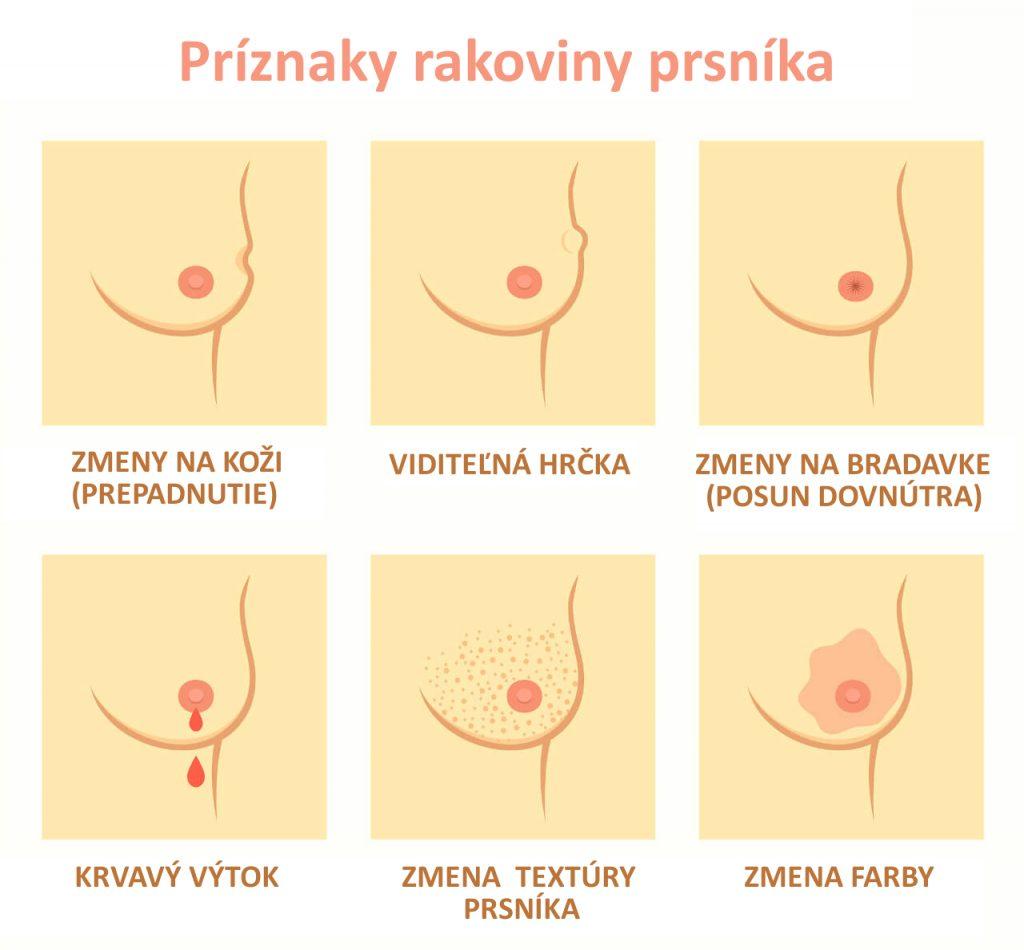 Rakovina prsníka - príznaky