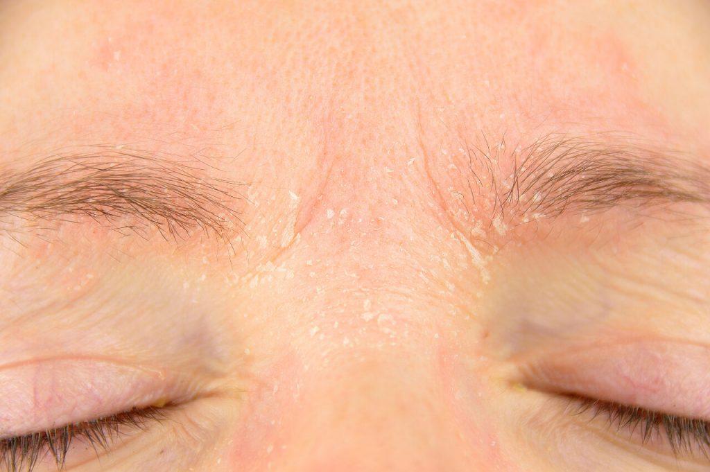 Seborea (seboroická dermatitída), oblasť obočia