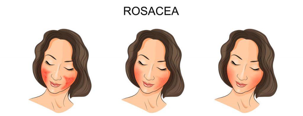 Rosacea (ružovka) - formy + príznaky